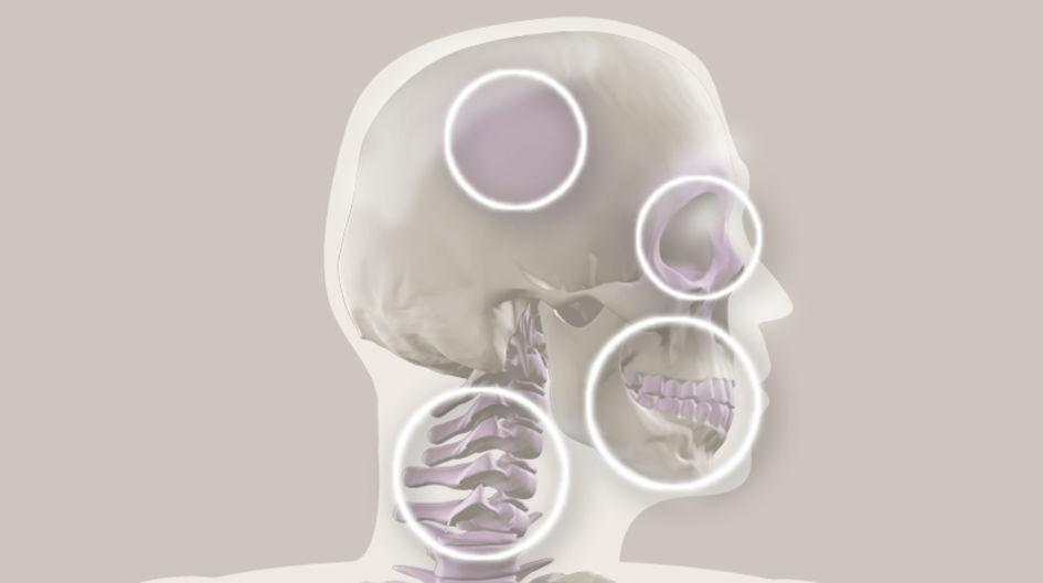 Cranio-Maxillo-Fazial - PEEK-Implantate für die Kiefer- und Gesichtschirurgie sowie für den Halswirbelsäulenbereich lassen sich einfacher herstellen als Metall- oder Kobalt-Chrom-Implantate. Die geringere Wärmeleitfähigkeit von PEEK verhindert eine Kälteempfindlichkeit bei direkt unter der Haut liegenden Implantaten.