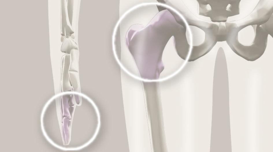 Orthopädie - Die wachsende Nachfrage nach leistungsfähigeren Materialien in der Orthopädietechnik hat die Tür für PEEK zur nächsten Produktgeneration aufgestoßen. Insbesondere in der Orthopädie ist die Röntgentransparenz von PEEK von Vorteil, um den Heilungsprozess optimal verfolgen zu können.