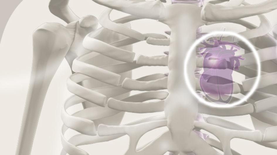"""Herzkreislauf - Eine Vielzahl neuer Implantate wird für kardiovaskuläre Anwendungen mit PEEK in Form von Composites oder """"stand alone""""-Implantaten entwickelt. Ein Grund dafür sind neben seinen guten elektrischen Isolationseigenschaften auch die hervorragenden mechanischen Eigenschaften."""