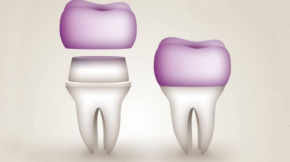 """Kronen - Kronen ersetzen den präparierten Zahn hinsichtlich Funktion, Zahnfarbe- und form. Kronen können mit Kunststoffverblendmaterialien durch Teil-oder Vollverblendung individualisiert oder vollanatomisch gefertigt werden. Besonders überzeugen vollanatomische Kronen aus VESTAKEEP®PEEK aufgrund ihrer zusätzlichen Eigenschaft als """"Stoßdämpfer"""". Dies ist sowohl für den Antagonisten als auch für das Kiefergelenk sehr von Vorteil."""