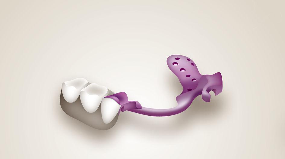 Partielle Prothesen - Eine partielle Prothese ersetzt einen oder mehrere fehlende Zähne in Kombination mit dem Restzahnbestand im Patientenmund. Partielle Prothesen aus Stahl haben ein verhältnismäßig hohes Gewicht und zudem wird jedes Essen von Metallgeschmack begleitet. Partielle Prothesen aus VESTAKEEP® PEEK überzeugen durch ihren außergewöhnlichen Tragekomfort und kein Kälteempfinden – eine perfekte Kombination aus Stabilität und leichtem Gewicht.