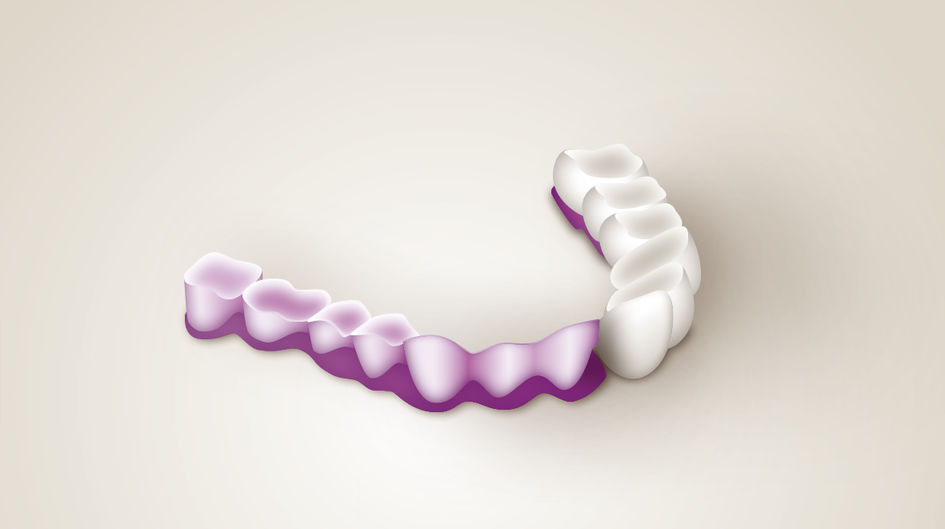 Bridges - Bridges are a combination of caps and pontics to restore grinded and missing teeth. Bridges made of VESTAKEEP® PEEK are possible for large and small bridges and have similar application uses as metal: customizable with composite, vestibular veneering or full crowns based on PEEK in the posterior region. Additional advantages over metal include light weight and shock absorbtion.