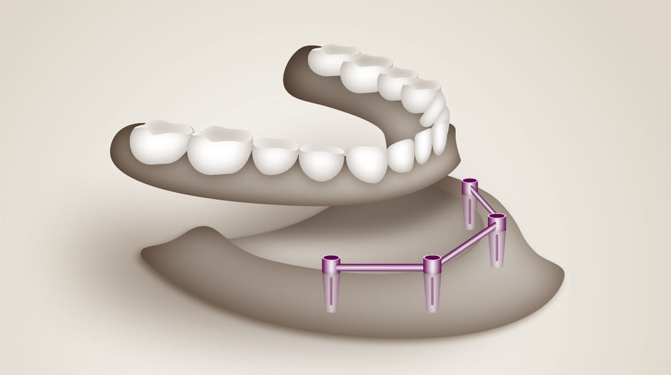 Bar restorations - Bar restorations are removable restorations on the inserted implants in the jaw. Bar restorations based on VESTAKEEP® PEEK ensure removability without wear, no metal taste of the denture, light weight and minimal size for easy handling by the patient.
