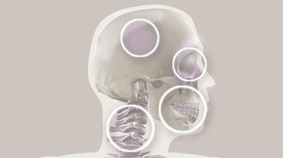 Cranial-Maxillo-Facial - PEEK implants for maxillofacial surgery and cervical vertebrae are easier to manufacture than metal or cobalt chrome. Due to the low thermal conductivity of PEEK, patients have less sensitivity to temperature changes.